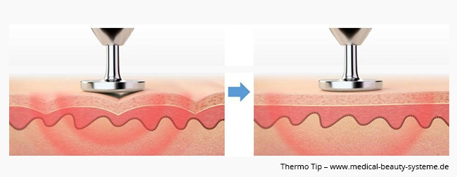 Thermo Tip
